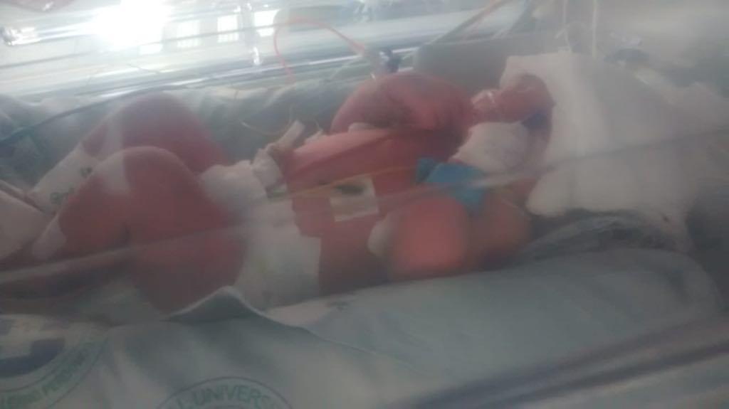 Negligencia por parte de la Eps Comparta tiene entre la vida y la muerte a un recién nacido
